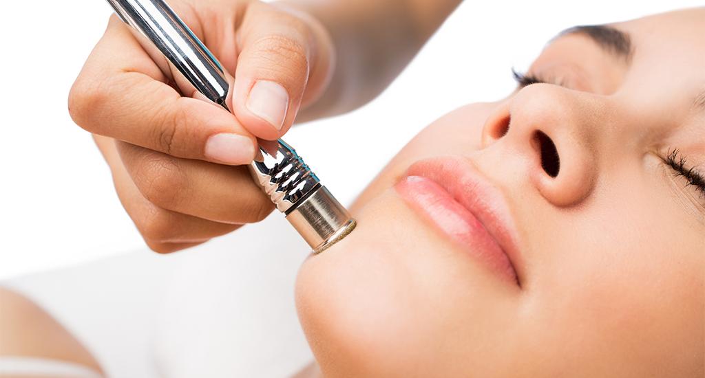 Microdermabrasion Behandlung am Gesicht einer jungen Frau